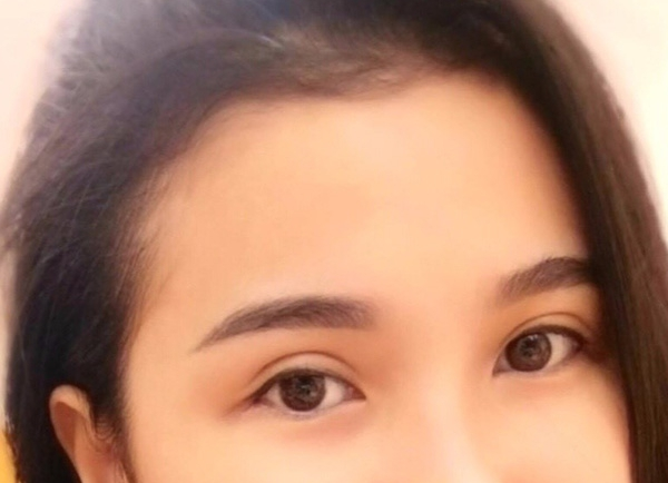 Phẫu thuật sụp mí mắt
